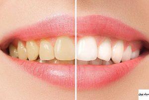 سفید کردن دندان زرد